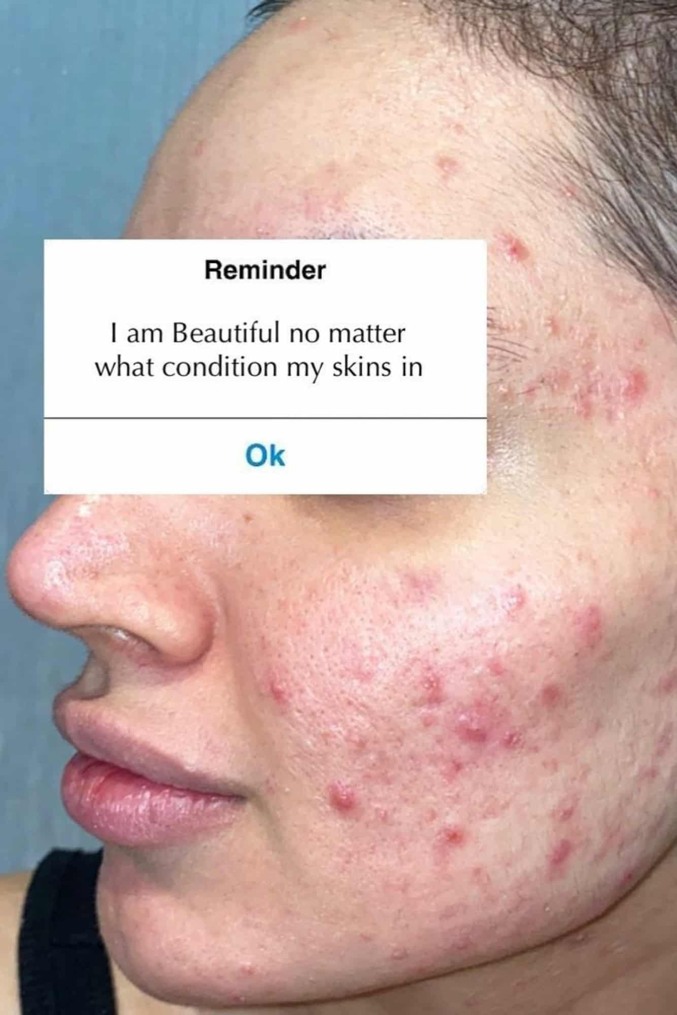acne-positivity-hp